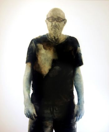 Artist: Rachel Coad | Title: Tim, third-degree burns | Subject: Tim Burns